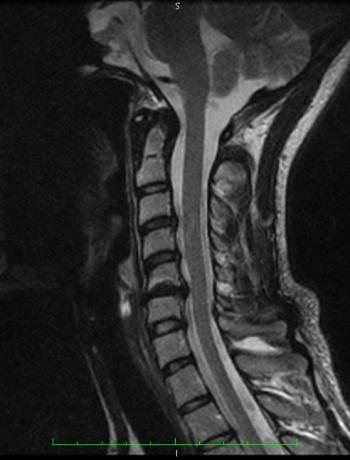 C-Spine MRI